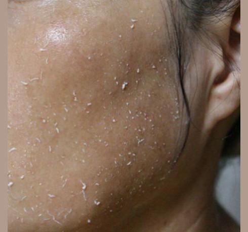 Витаминный пилинг-скатка для тусклой кожи Elizavecca Milky Piggy Hell Pore Vitamin Brightturn Peeling Gel